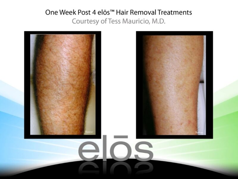 before and after laser treatment on a leg