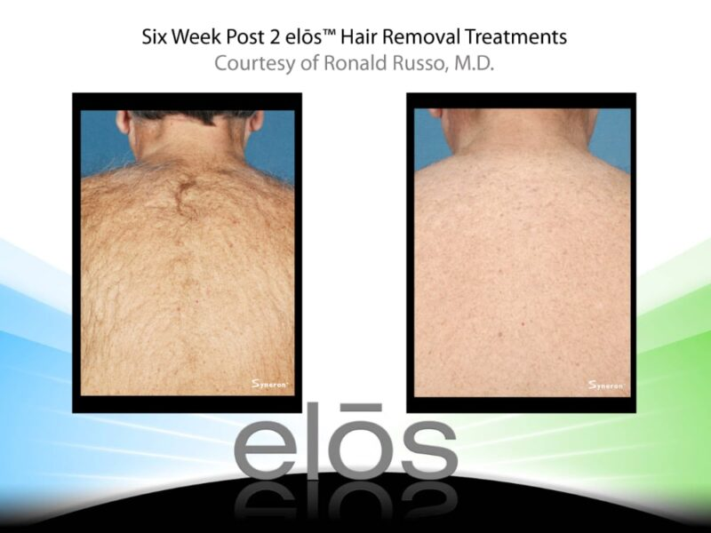 before and after laser treatment on a man's back