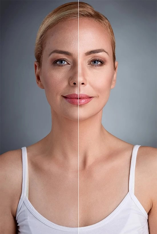 portrait of woman with line down the middle showing before and after results from dermaplaning