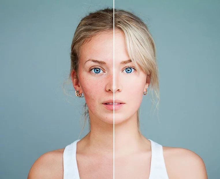 portrait of woman with line down the middle showing before and after results from photo rejuvenation