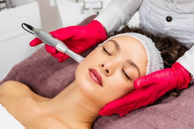 Young woman lying on table getting a microneedling treatment performed on her cheek