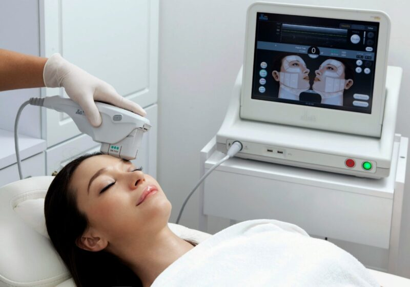 Young woman lying on table with HIFU ultrasound machine on forehead